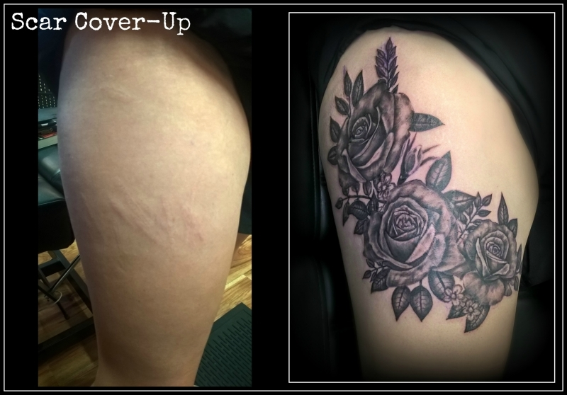 Tattooing scar tissue